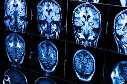 Precisamos falar sobre padronização de imagens médicas em equipamentos