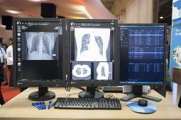 Pixeon aumenta sua exposição na JPR e apresenta novidades para o mercado de tecnologia para saúde