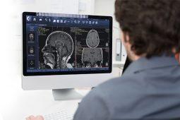 Pixeon leva para a JPR software de gestão de imagem para centros de radiologia