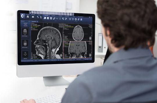 La usabilidad de un sistema de PACS impacta en la productividad de los profesionales de salud