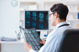 Médico do futuro: a IA vai substituir o radiologista?